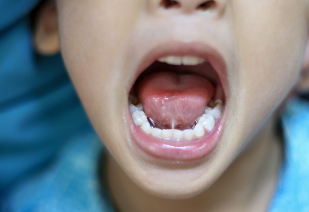 How To Prevent Tooth Decay In Your Baby