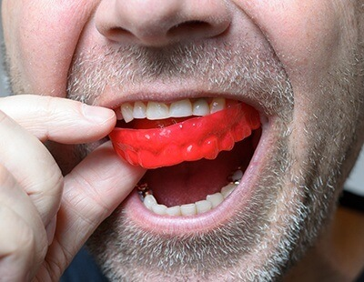 Custom crafted athletic mouth guard for protection while playing sports