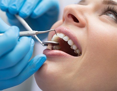 Scaling and root planing is focused on gum line and roots of the teeth and helps avoid gum disease