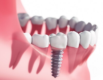 Dental implants can replace an entire tooth both above and below the gum line